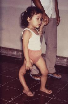 Pakistanii child displaying a deformity of her right lower extremity due to polio, photo courtesy of Center for Disease Control