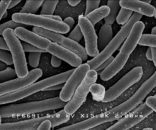 E. Coli WARNING: This Photo Banned in the State of Wyoming